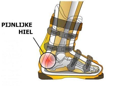 pijn zijkant voet hiel